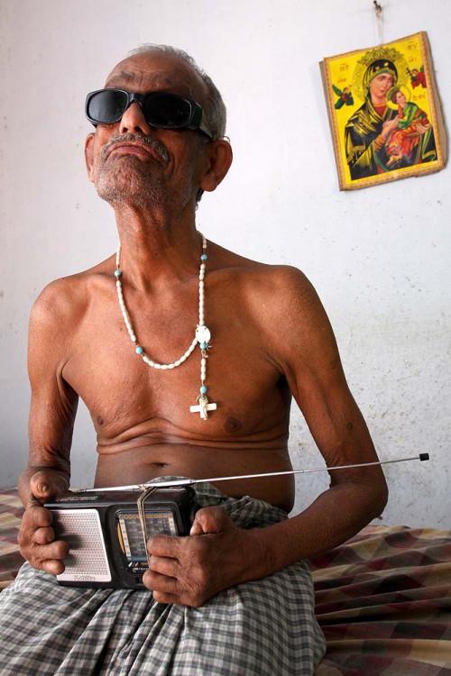 Lepra-Patient_Adaikalaraj_Indien